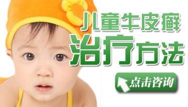 中医治疗儿童牛皮癣的优点有哪些呢