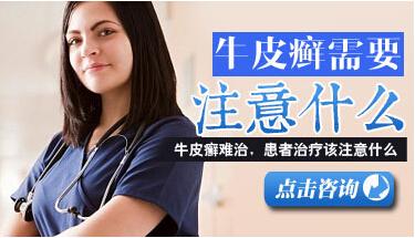 中西医解答成人牛皮癣的病因病理