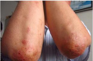 关节型牛皮癣有什么显著的症状吗